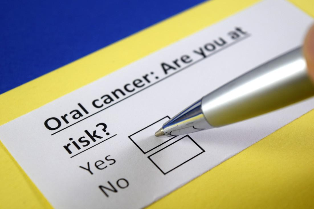 Top 5 Risk Factors for Oral Cancer